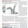 005: 世界初の胃瘻の病理所見